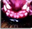 Нарушение смены зубов